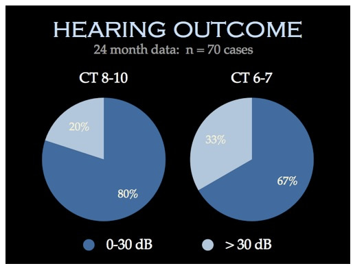 Hearing Outcomes